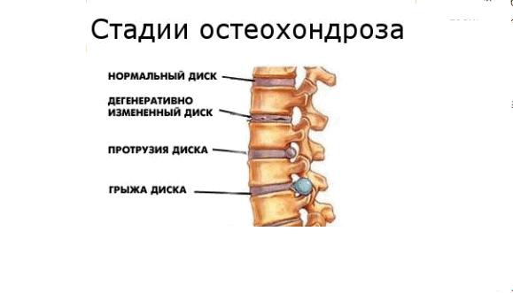 предложить как проявляется шейный и грудной остеохондроз что сейчас