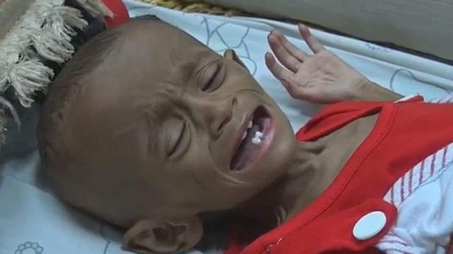 ООН: ситуация в Йемене остаётся тяжёлой