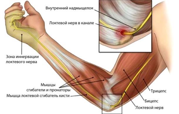 Боли в руке и частичная утеря работоспособности руки при проблемах с локтевым нервом