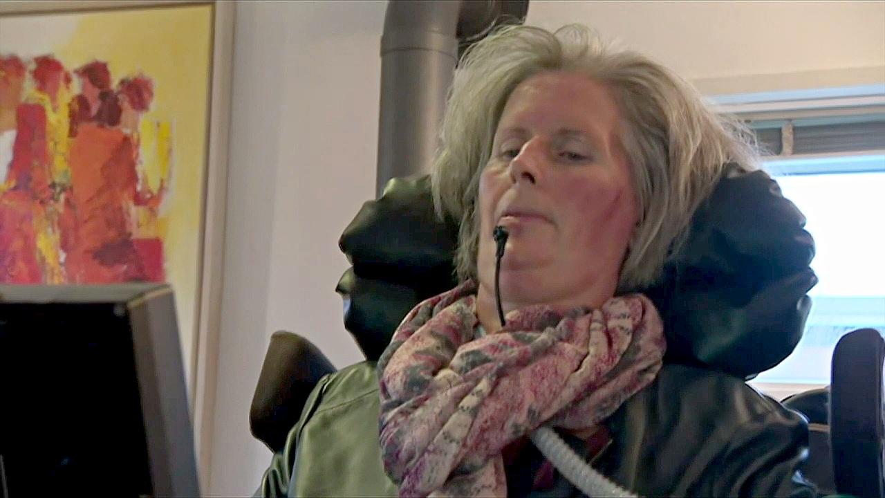 Уникальный имплантат в мозгу позволил парализованной общаться