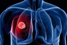 Ситуация с лечением рака легких в Украине