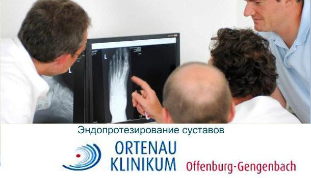 Замена суставов в немецкой клинике Ortenau