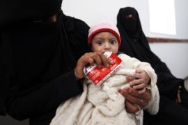 ЮНИСЕФ: тысячи детей в Йемене страдают от недоедания