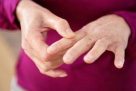 Артрит пальцев рук – бич современных людей