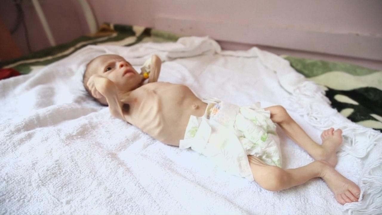 ООН: 1,4 млн детей — на грани голодной смерти