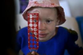 Пострадавшим детям-альбиносам из Танзании помогут в США