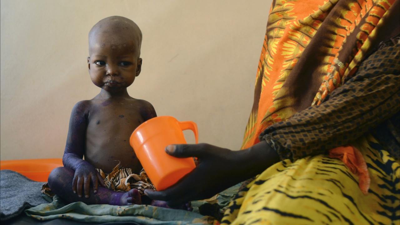 ООН ещё громче призывает помочь Африке справиться с голодом