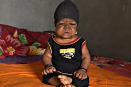 Индиец 22 года живёт взаперти в теле младенца