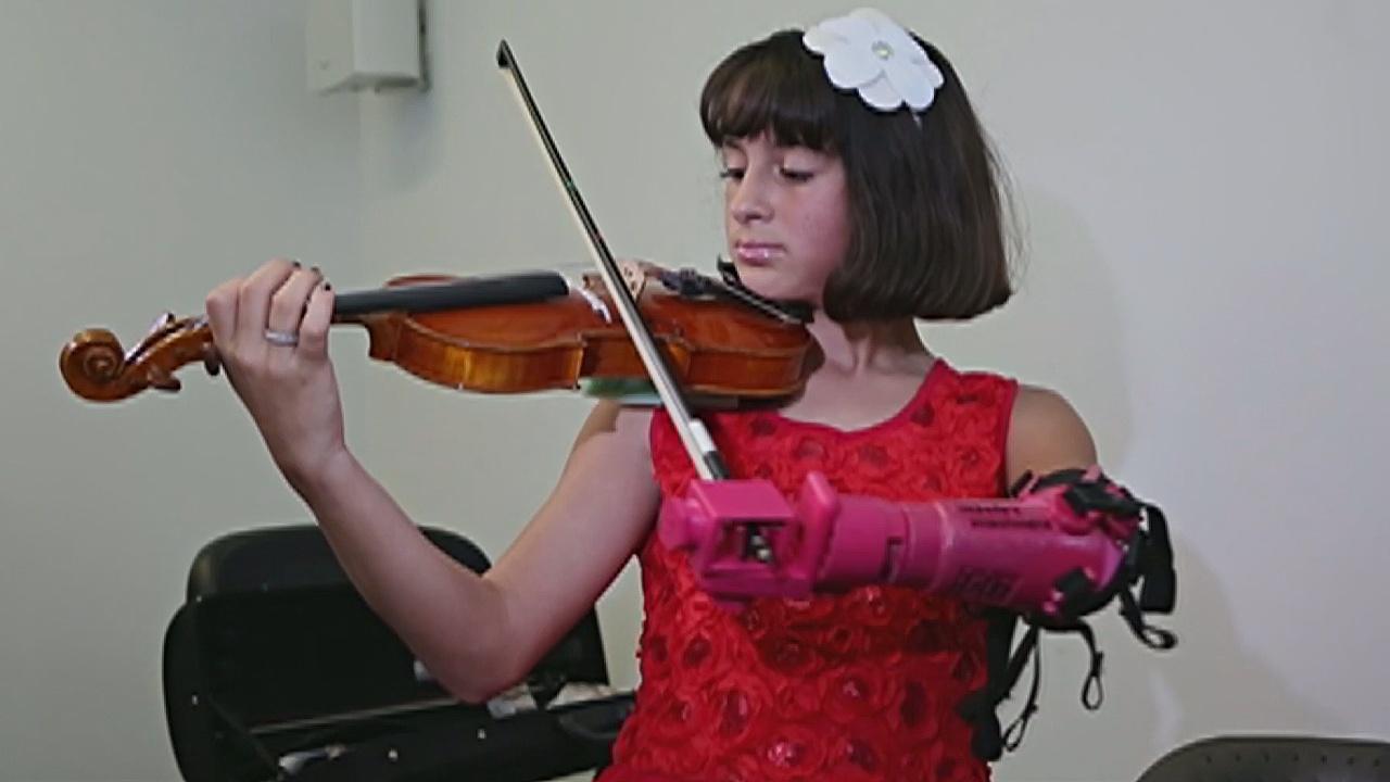 Протез помогает девочке без руки играть на скрипке