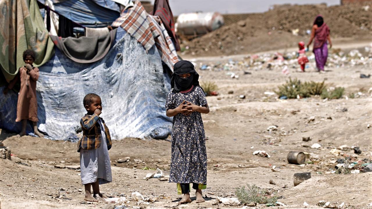 ВПП: ситуация в Йемене ухудшается из-за голода и холеры