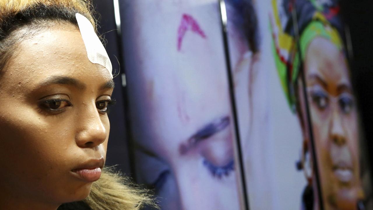 ЮАР предоставила иммунитет первой леди Зимбабве, избившей модель