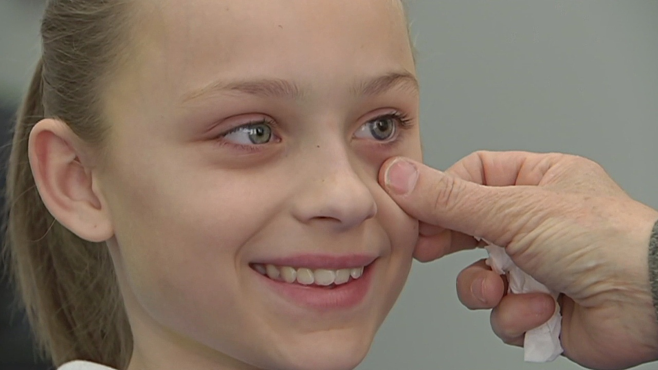 Люди с протезом глаза фото