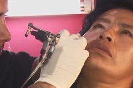 Мастера татуировки в Боливии помогают людям с пятнами на коже
