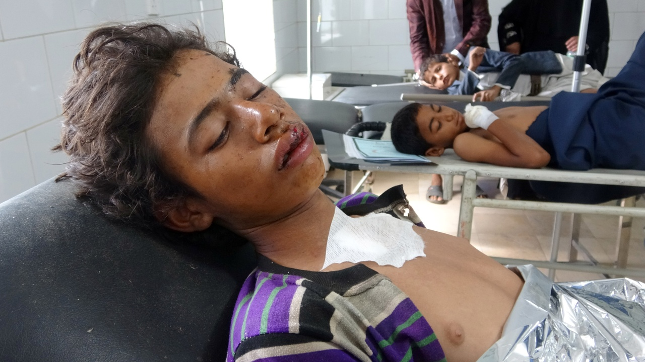 Авиаудар в Йемене: погибли 20 гостей деревенской свадьбы