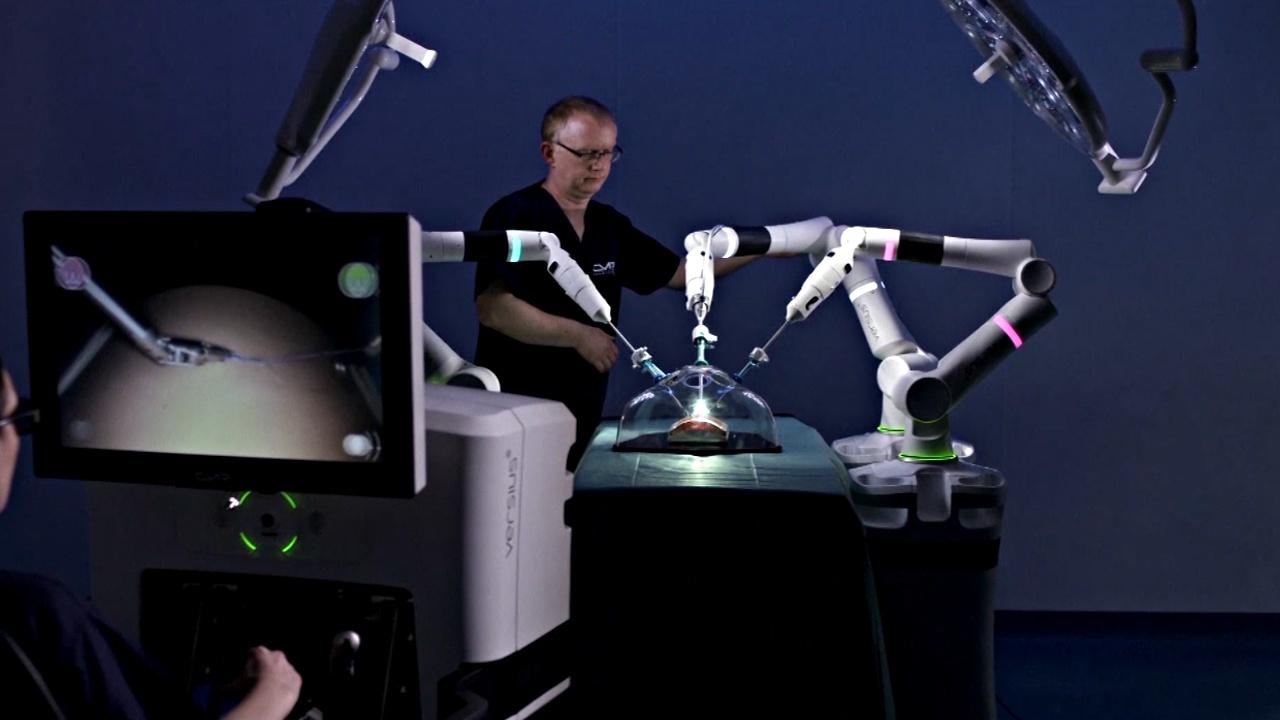 В Великобритании разработали робота-хирурга для малоинвазивных операций