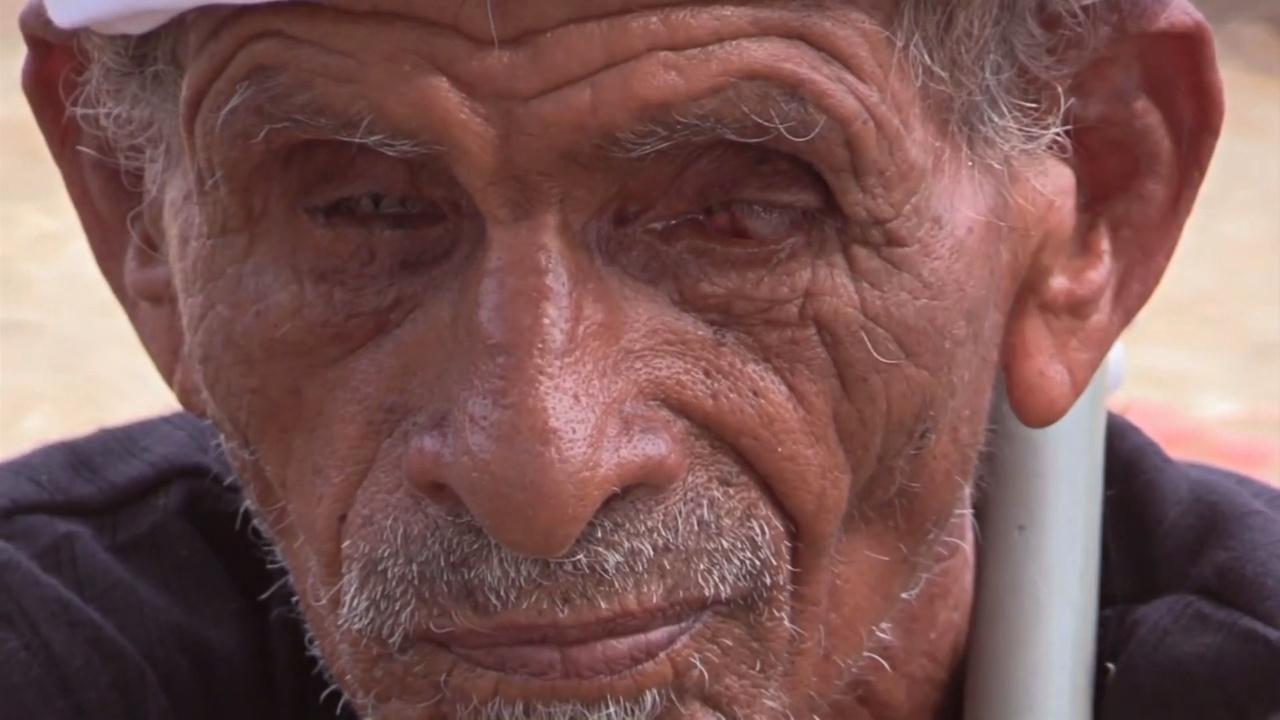 Жители йеменской деревни рождаются слепыми из-за генетических патологий