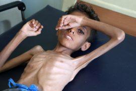 ЮНИСЕФ: в Йемене каждые десять минут умирает маленький ребёнок
