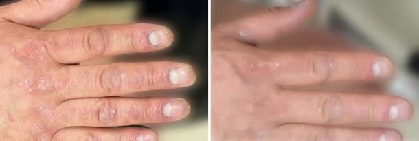 Псориаз. До и после лечения