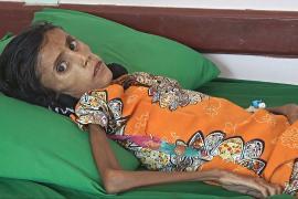 Голодающая девочка – лицо йеменской войны и гуманитарного кризиса