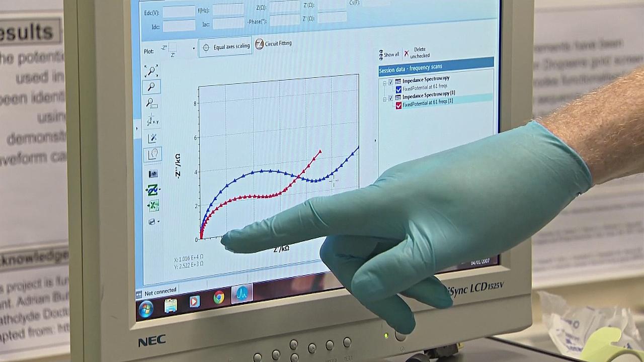 Раннее диагностирование сепсиса может спасать жизни