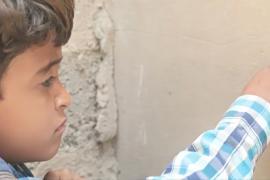 8-летний йеменец почти ослеп в результате авиаудара