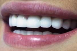 Бюджетные стоматологические услуги в СПб