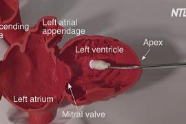 Учёные разработали «умный» катетер для операций на сердце