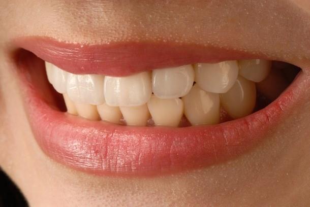 Новые технологии в реставрационной стоматологии