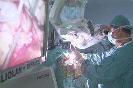 «Розовый напиток» поможет хирургам удалять рак мозга