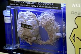 Музей паразитов в Токио привлекает туристов солитёрами и клещами