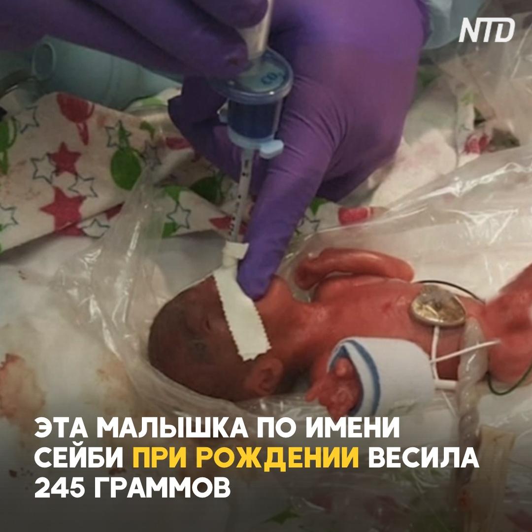 Девочка при рождении весила 245 г. Какой она стала сейчас?