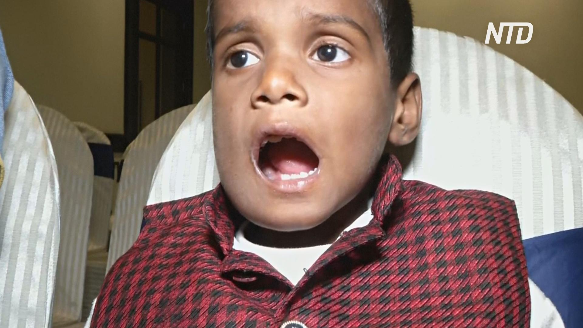 У семилетнего индийца выросло более 500 зубов