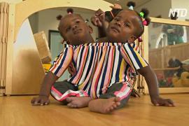 Сиамские близнецы из Сенегала начинают новую жизнь в Великобритании