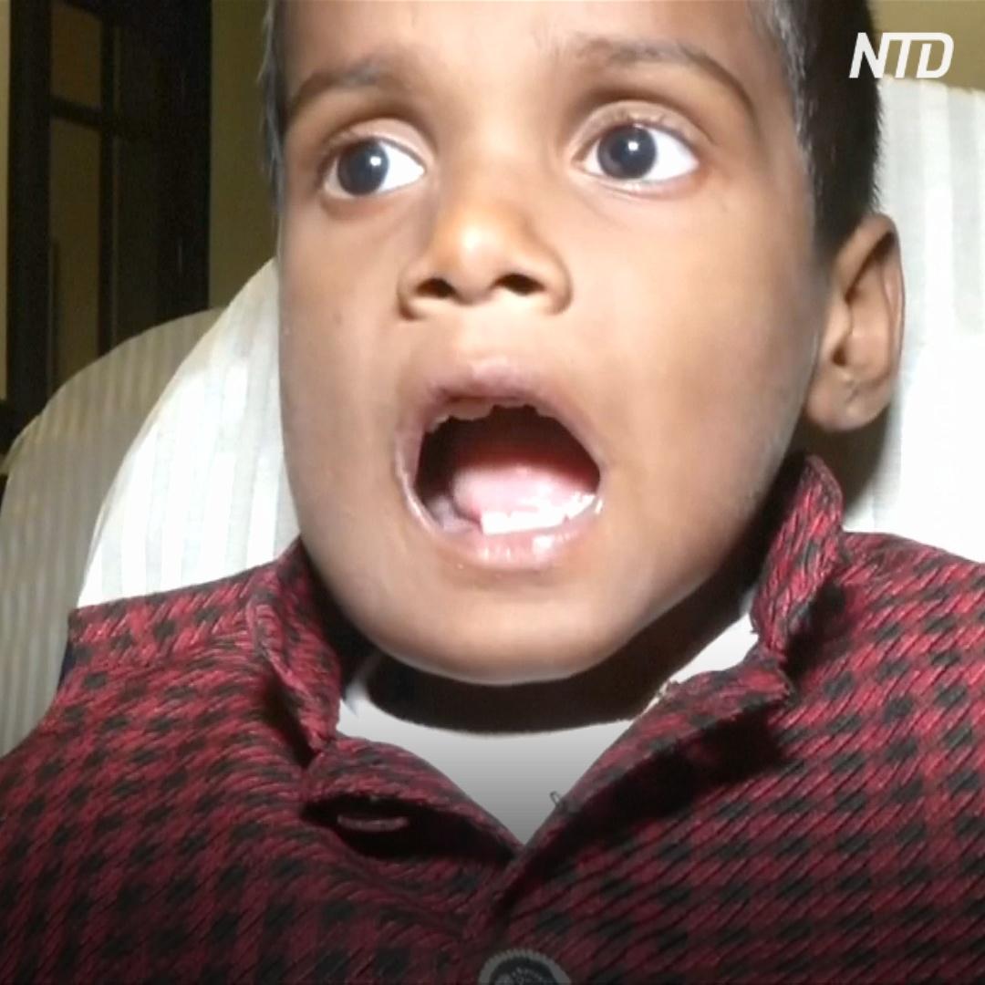 Удивительная Индия: 526 зубов в челюсти мальчика и 1,5 кг украшений в желудке женщины