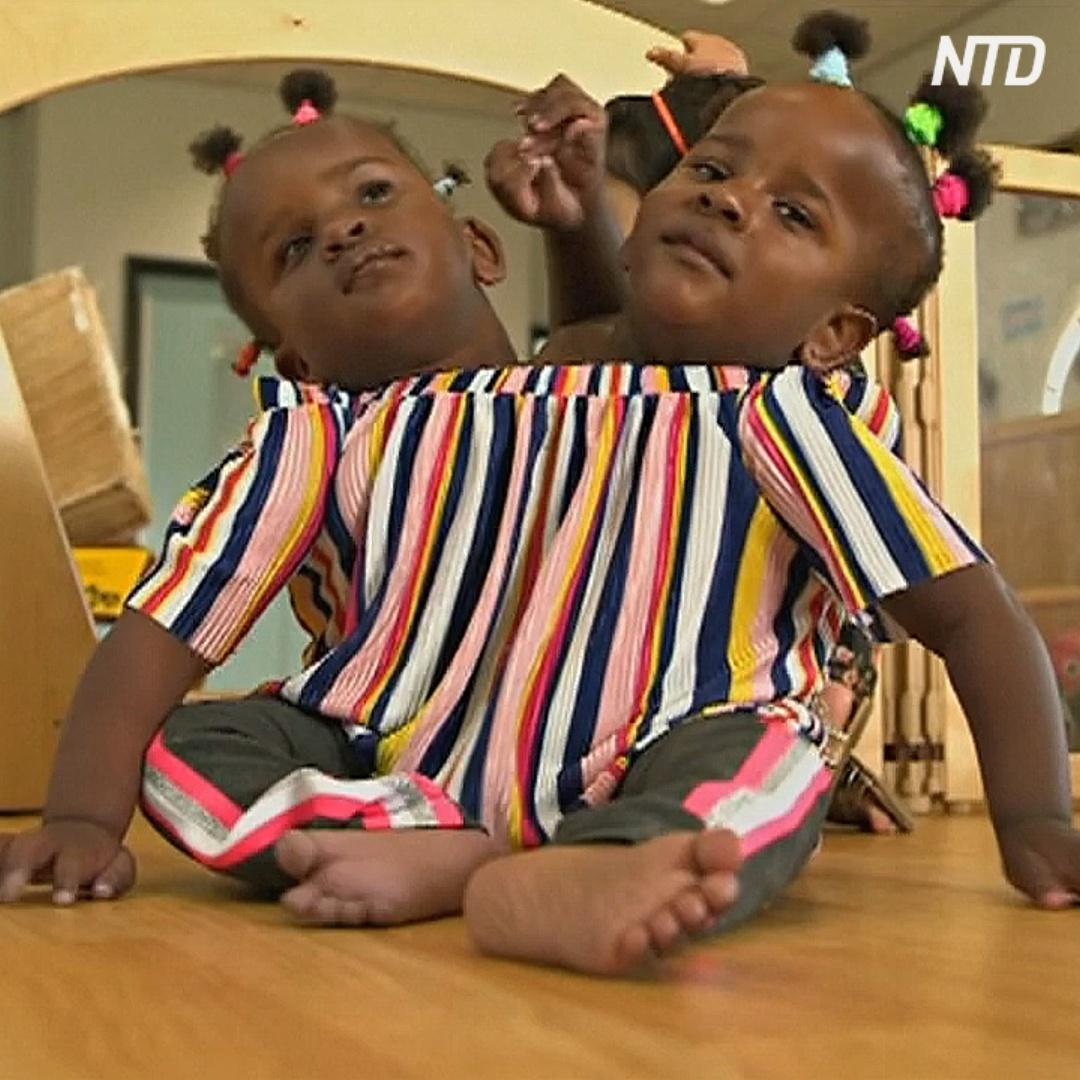 Сиамских близнецов из Сенегала не смогут разделить
