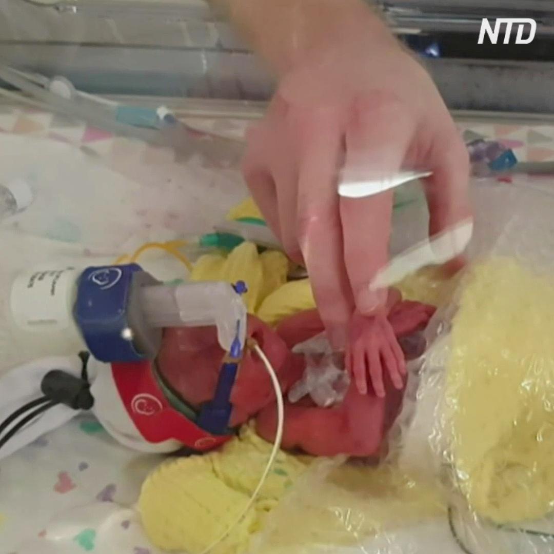 Как в Австралии успокаивают недоношенных детей