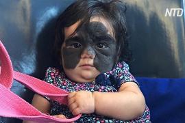 Американскую девочку с пятном на всё лицо будут лечить в России