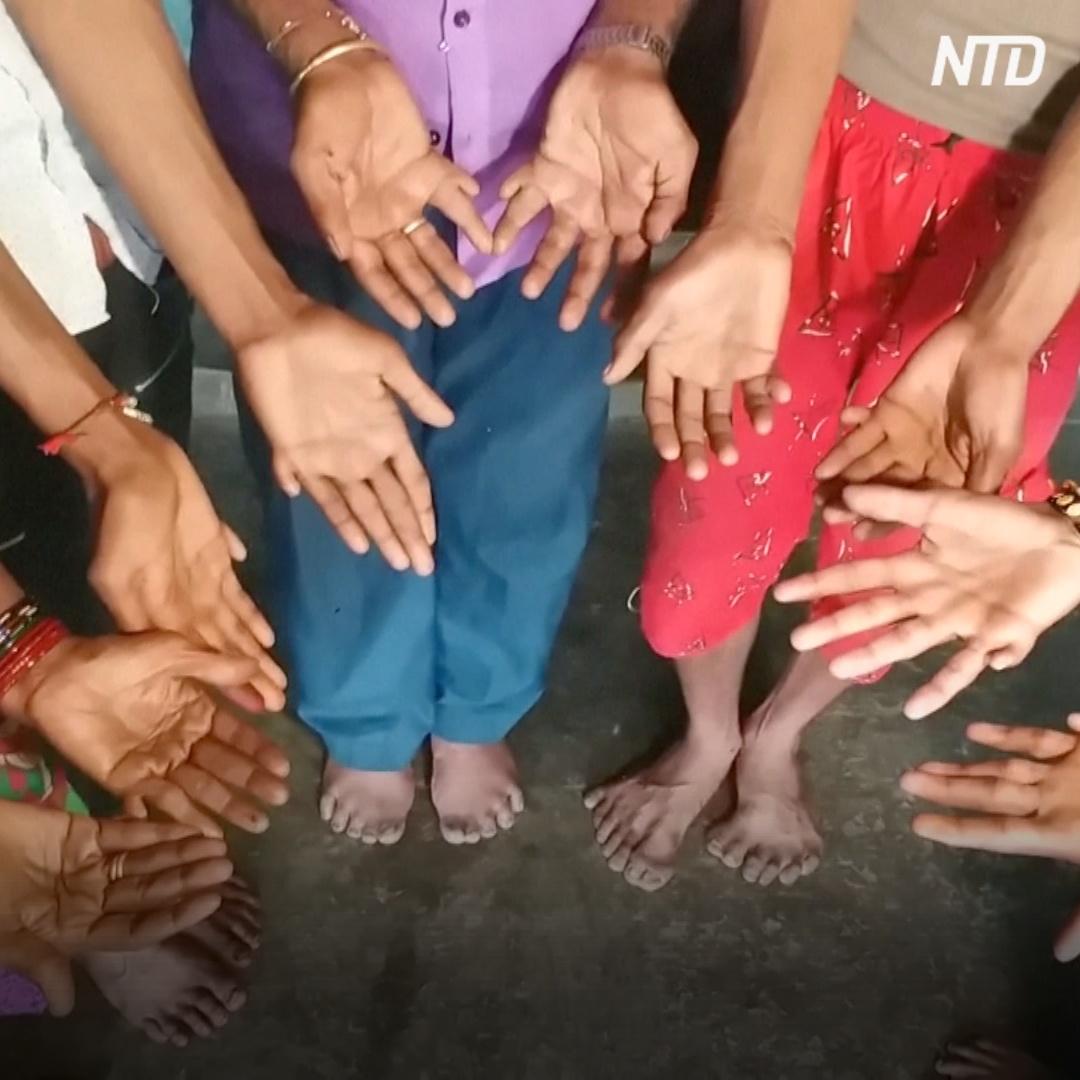 25 родственников в Индии родились с аномалией – многопалостью