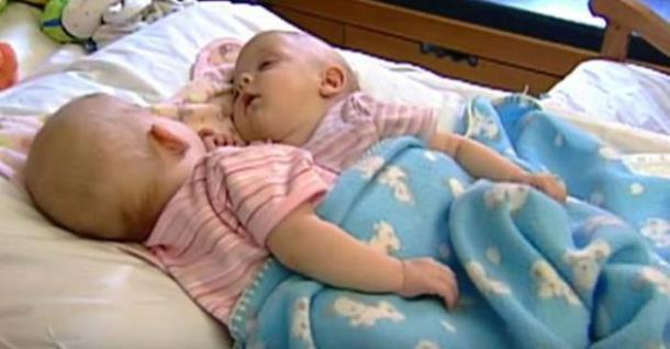 Как выглядят сейчас сиамские близнецы, которых разделили более 10 лет назад
