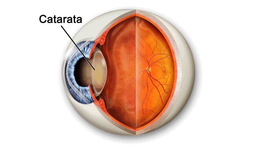 Лечение катаракты в Московской клинике