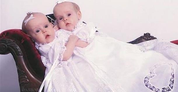 Сиамским близнецам, которых разделили в четыре года, исполнилось 17