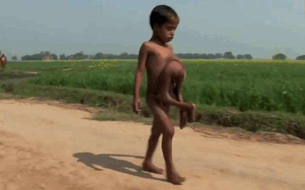 У мальчика до семи лет было восемь рук и ног