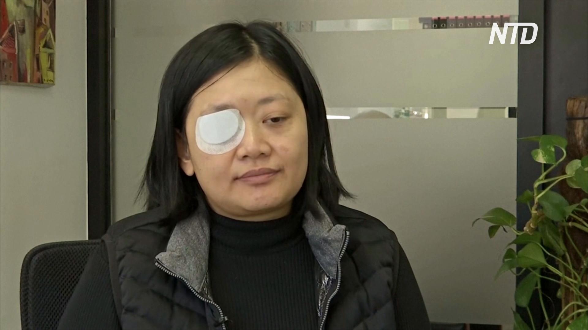 Индонезийская журналистка в Гонконге потеряла глаз из-за выстрела полицейского