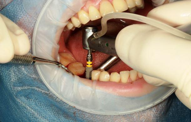 Доступная цена на зубные импланты в Калининграде