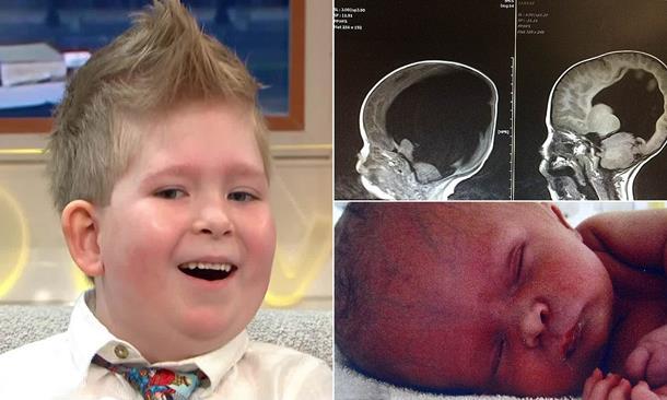 Мальчик родился с 2% мозга: каким он стал к семи годам?