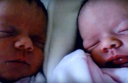Как выглядят сёстры-близнецы с разным цветом кожи