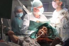 Во время операции на головном мозге пациентка была в сознании и играла на скрипке