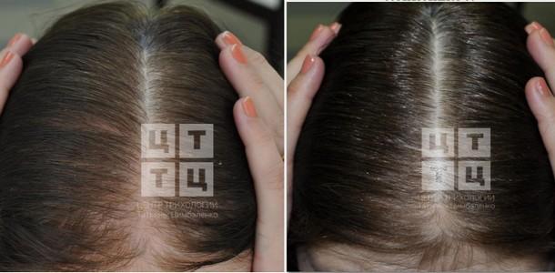 Результаты лечения:  До и После