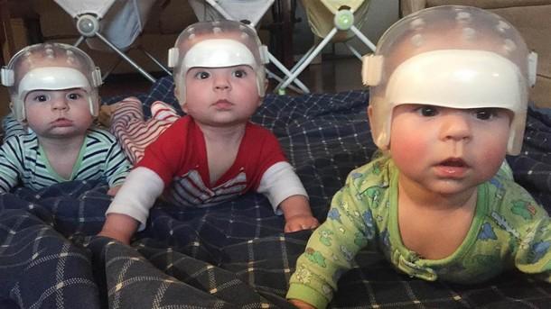 Novyj risunok 1 3 - Зачем на новорождённых тройняшек надели шлемы