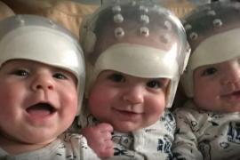 Зачем на новорождённых тройняшек надели шлемы